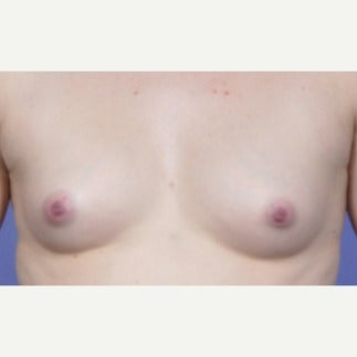 Breast Fat Transfer in 25-34 year old woman before 1746075