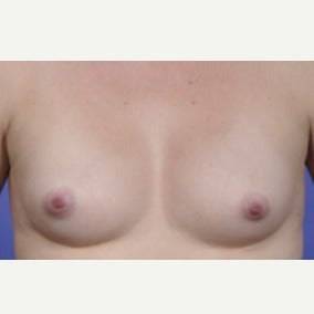 Breast Fat Transfer in 25-34 year old woman after 1746075