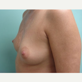 35-44 year old woman treated with Breast Augmentation before 3167950