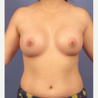 25-34 year old woman treated with Breast Augmentation after 3095768