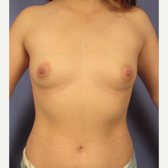 25-34 year old woman treated with Breast Augmentation before 3095768