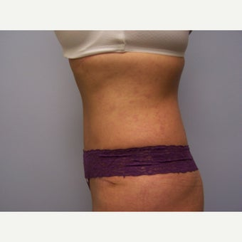 35-44 year old woman treated with Tummy Tuck 1631311