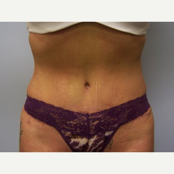 35-44 year old woman treated with Tummy Tuck after 1631311