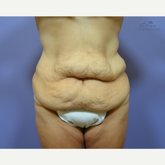 35-44 year old woman treated with Liposuction before 3421338