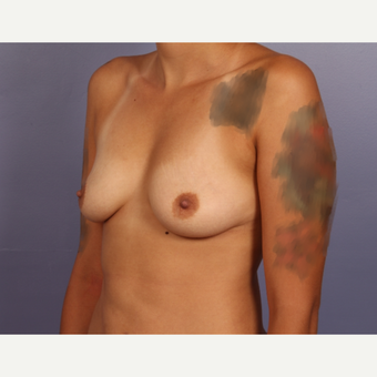 18-24 year old woman treated with Breast Augmentation before 3502484