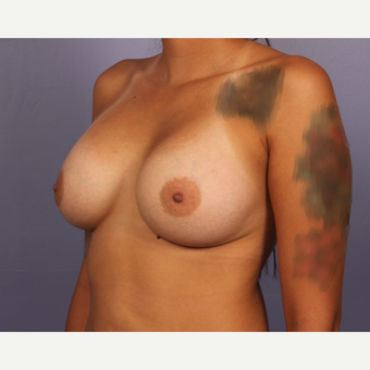 18-24 year old woman treated with Breast Augmentation after 3502484