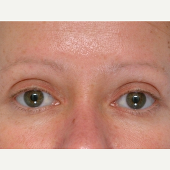 35-44 year old woman treated with Eyelid Surgery after 3488168