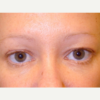 35-44 year old woman treated with Eyelid Surgery before 3488168