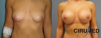 Supercharged Composite Breast Augmentation (Silicone implant plus extra shaping with fat micrografting  before 1285083