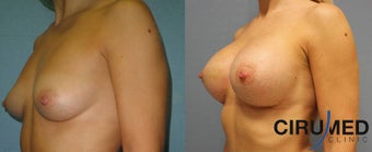 Supercharged Composite Breast Augmentation (Silicone implant plus extra shaping with fat micrografting  after 1285083