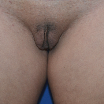 35-44 year old woman treated with Labiaplasty after 3094090