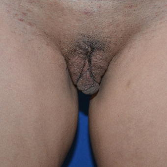 35-44 year old woman treated with Labiaplasty before 3094090