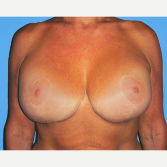45-54 year old woman treated with Breast Lift with Implants after 3748842