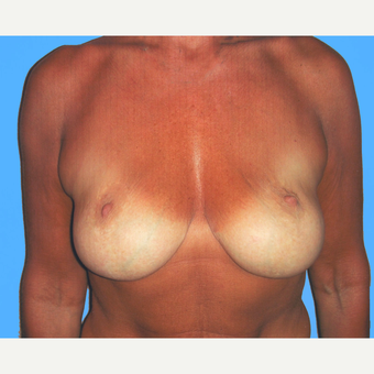 45-54 year old woman treated with Breast Lift with Implants before 3748842