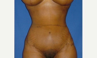 35-44 year old woman treated with Tummy Tuck after 2289356