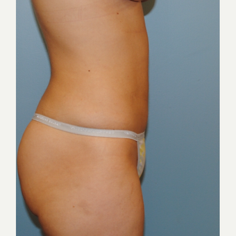 26 year old woman had liposuction of her abdomen and her love handles. after 3142644