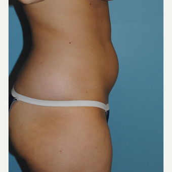 26 year old woman had liposuction of her abdomen and her love handles. before 3142644
