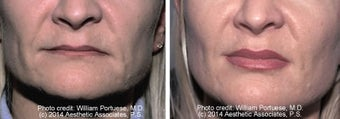 Lip Augmentation before 1385314