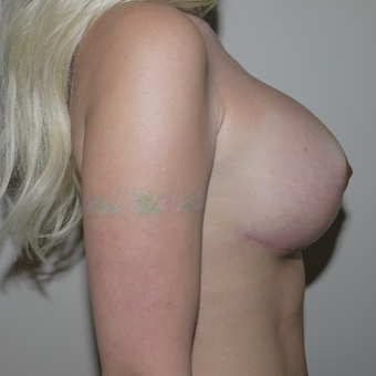 35-44 year old woman treated with Breast Implant Revision after 2773729