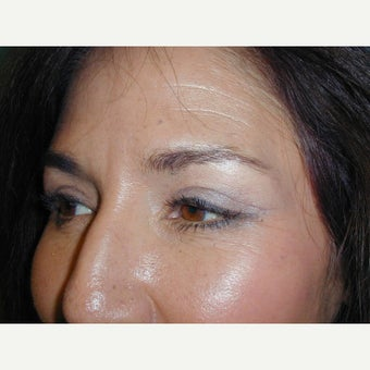 Eyelid Surgery after 2277204
