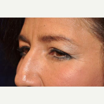 Eyelid Surgery before 2277204