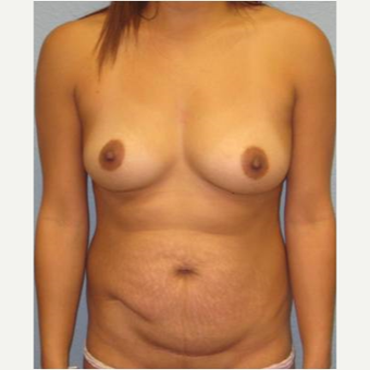 25-34 year old woman treated with Mommy Makeover before 3424055
