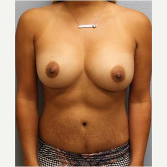 25-34 year old woman treated with Mommy Makeover after 3424055