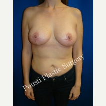 25-34 year old woman treated with Breast Reduction after 3006707