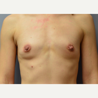 35-44 year old woman treated with Breast Augmentation before 3161487