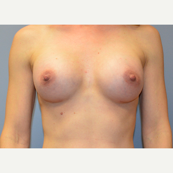 35-44 year old woman treated with Breast Augmentation after 3161487