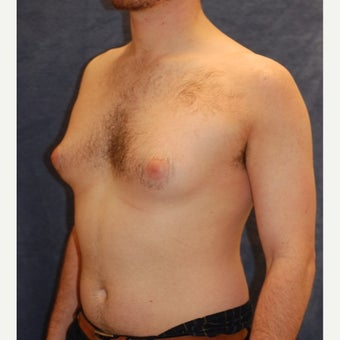 18-24 year old man treated with Male Breast Reduction before 1885580