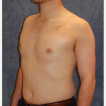 18-24 year old man treated with Male Breast Reduction after 1885580