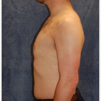 18-24 year old man treated with Male Breast Reduction 1885580