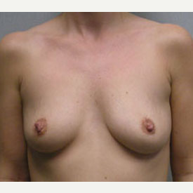 Breast Augmentation before 3681108