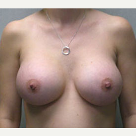 Breast Augmentation after 3681108