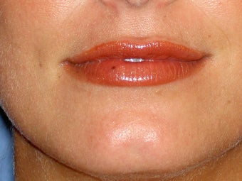 Before lip filler after 91241