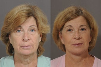 Lower Face and Neck Lift before 850299