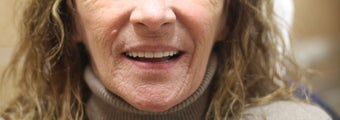 All-on-4 Dental Implants  after 1288230