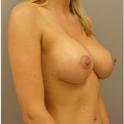 25-34 year old woman treated with Breast Lift with Implants after 3122403