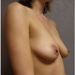 25-34 year old woman treated with Breast Lift with Implants before 3122403