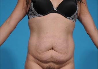 35-44 year old woman treated with Tummy Tuck before 3338923