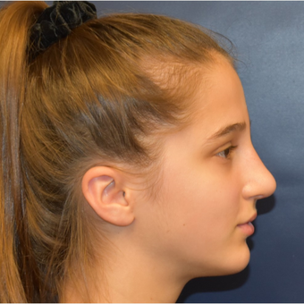 17 or under year old woman treated with Rhinoplasty after 3306016