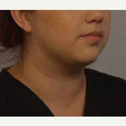 18-24 year old woman treated with Kybella after 2459023