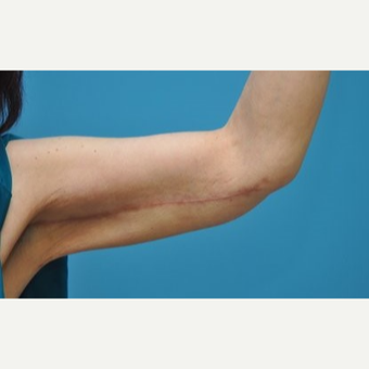 45-54 year old woman treated with Arm Lift/Brachioplasty after 3076408