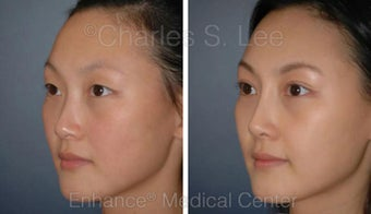 Blepharoplasty and Rhinoplasty before 426941