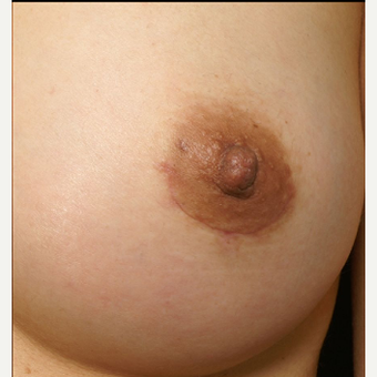 25-34 year old woman treated with Nipple Surgery after 3072287