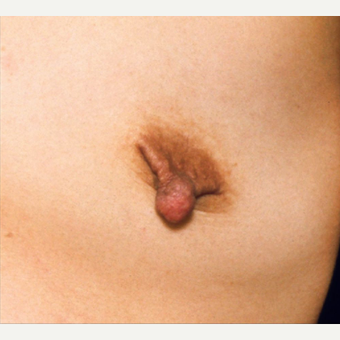 25-34 year old woman treated with Nipple Surgery before 3072287