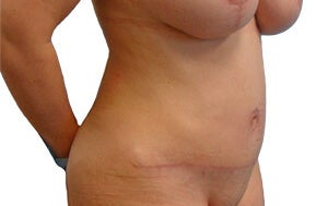 34 year old woman treated with Tummy Tuck 3174732
