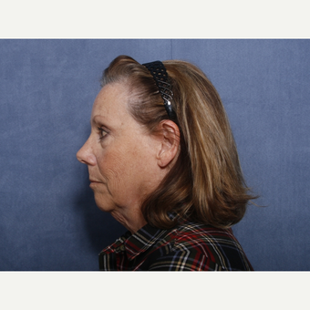 55-64 year old woman treated with Neck Lift (view 2 of 2) before 3175286