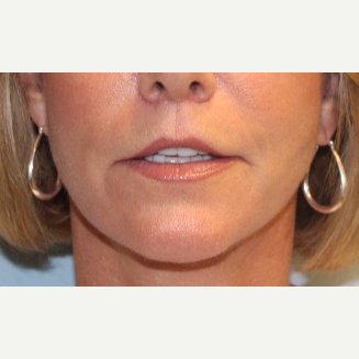 55-64 year old woman treated with Lip Lift after 3570822